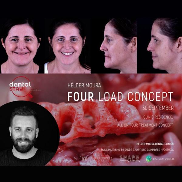 Four Load Concept