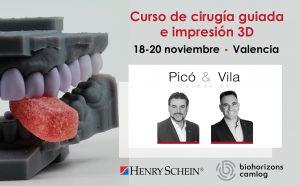 Cirugía guiada e impresión 3D